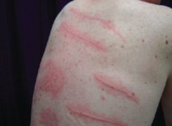 Stress Effects on Skin: Rash, Itching, Bumps ... - WebMD