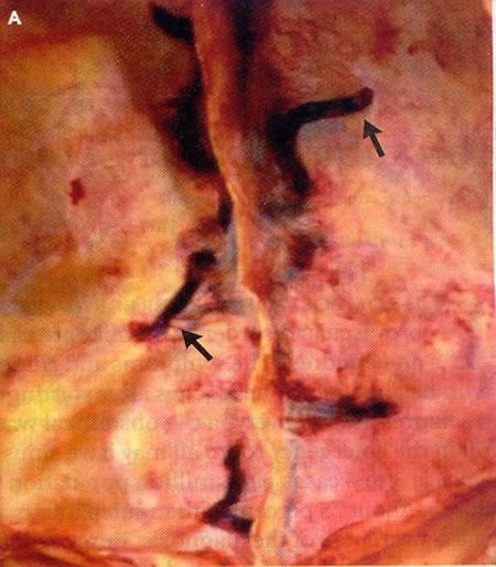 Varicosity sintomi in profondità fissi