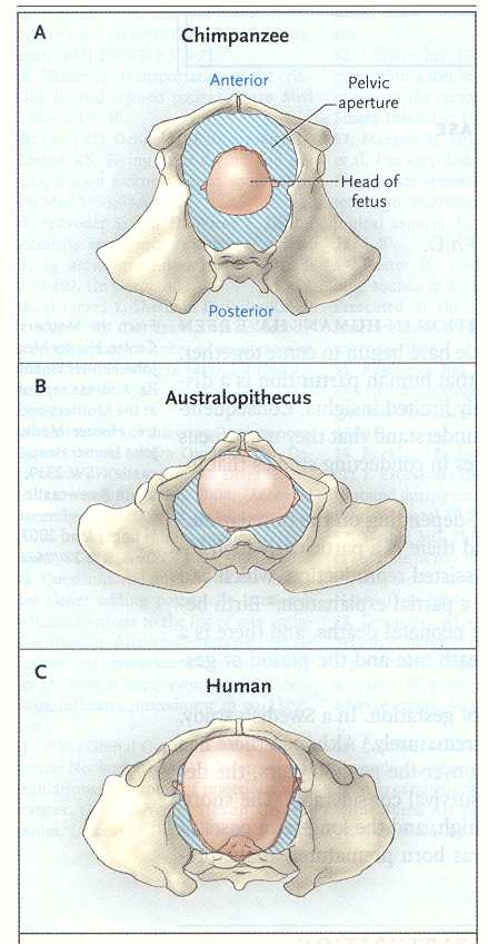 Le emorroidi affilate complicate da cura di trombosi