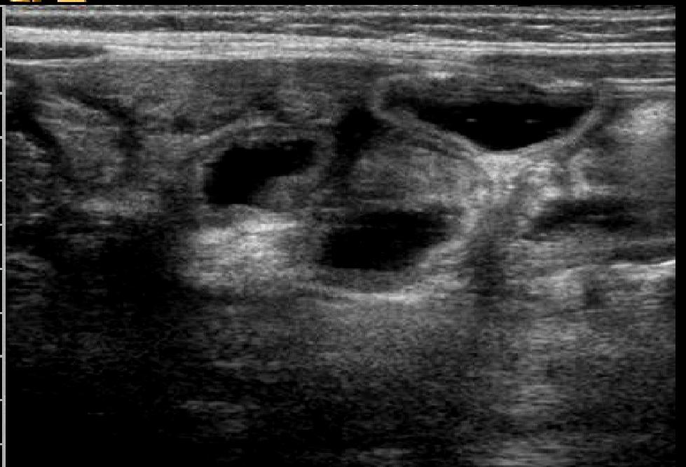 un u0026 39 ecografia intestinale  u0026 39 che parla u0026 39